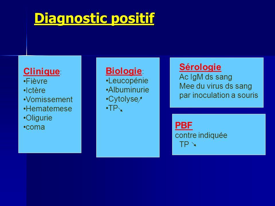 Diagnostic positif Clinique : Fièvre Ictère Vomissement Hematemese Oligurie coma Biologie : Leucopénie Albuminurie Cytolyse TP Sérologie Ac IgM ds san