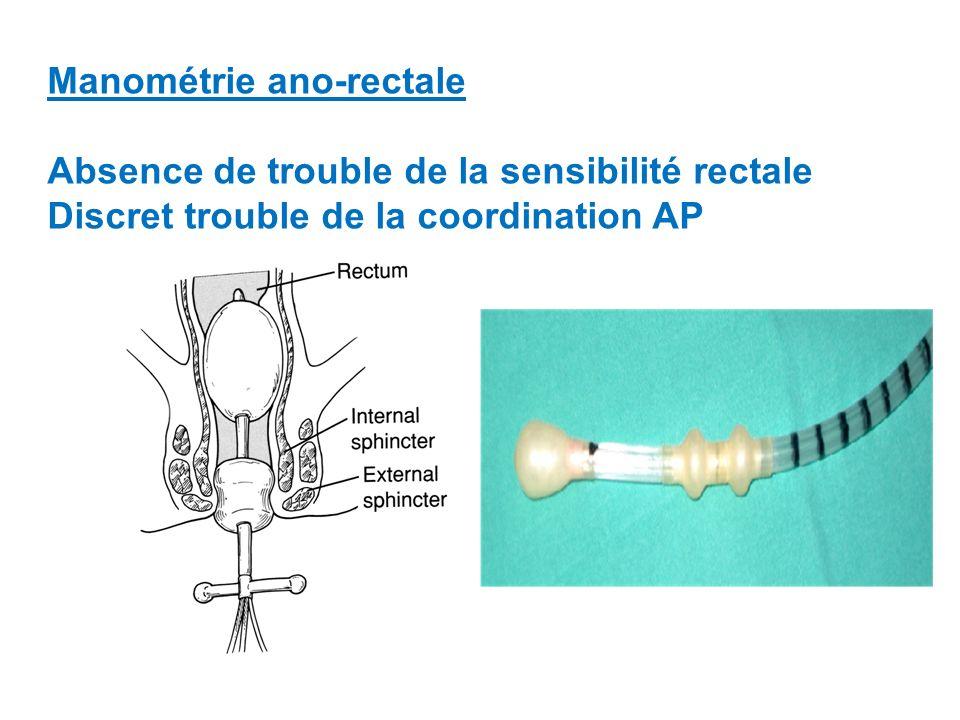 Manométrie ano-rectale Absence de trouble de la sensibilité rectale Discret trouble de la coordination AP
