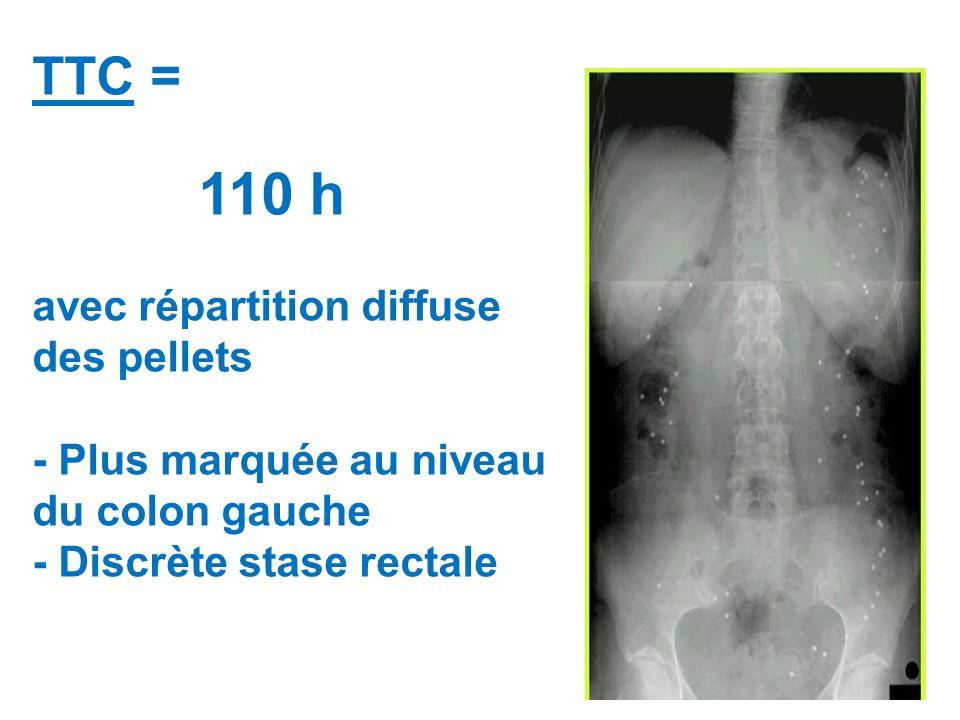 TTC = 110 h avec répartition diffuse des pellets - Plus marquée au niveau du colon gauche - Discrète stase rectale