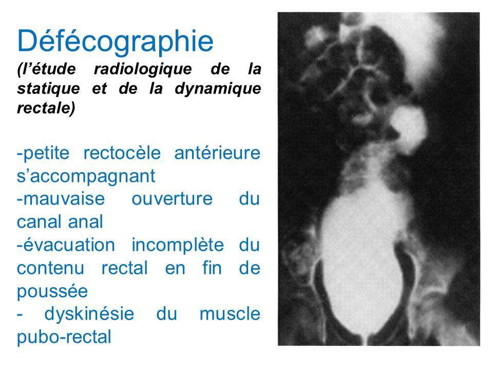 Défécographie (létude radiologique de la statique et de la dynamique rectale) -petite rectocèle antérieure saccompagnant -mauvaise ouverture du canal