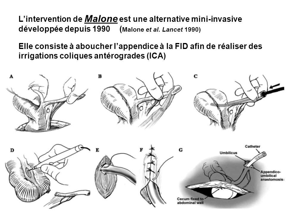 Lintervention de Malone est une alternative mini-invasive développée depuis 1990 ( Malone et al. Lancet 1990) Elle consiste à aboucher lappendice à la