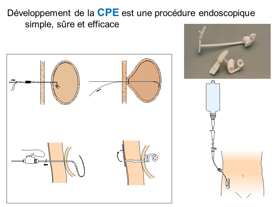 Développement de la CPE est une procédure endoscopique simple, sûre et efficace
