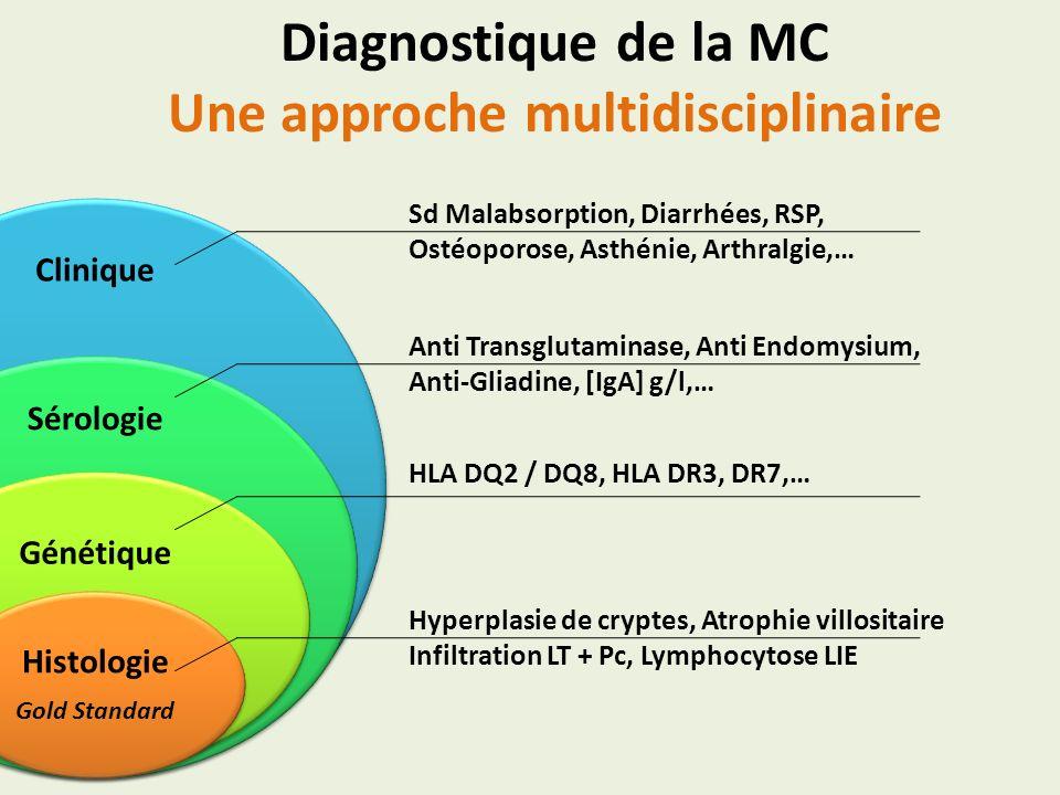 Diagnostique de la MC Une approche multidisciplinaire Clinique Sérologie Génétique Histologie Gold Standard Sd Malabsorption, Diarrhées, RSP, Ostéopor
