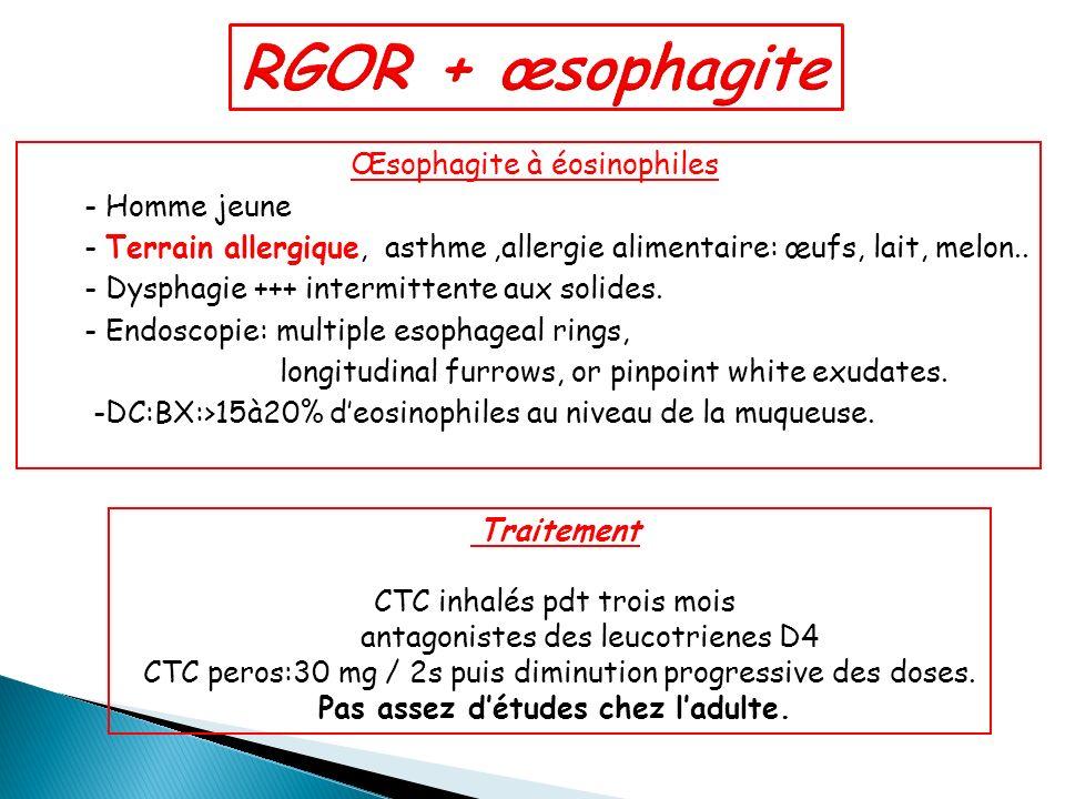 Œsophagite à éosinophiles - Homme jeune - Terrain allergique, asthme,allergie alimentaire: œufs, lait, melon.. - Dysphagie +++ intermittente aux solid