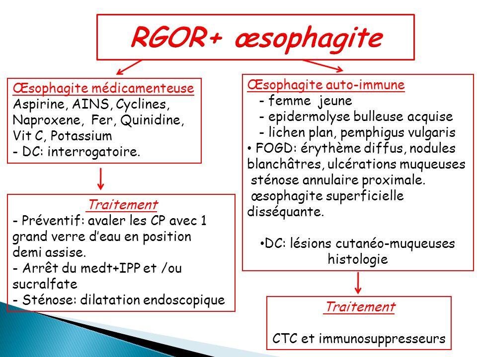 Œsophagite médicamenteuse Aspirine, AINS, Cyclines, Naproxene, Fer, Quinidine, Vit C, Potassium - DC: interrogatoire. Traitement - Préventif: avaler l