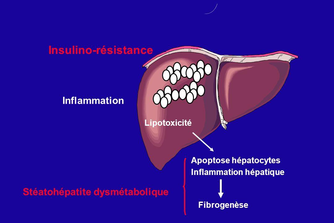 Insulino-résistance Inflammation Lipotoxicité Apoptose hépatocytes Inflammation hépatique Fibrogenèse Stéatohépatite dysmétabolique