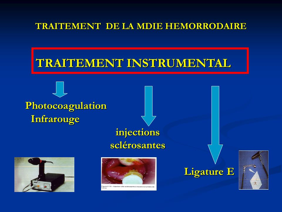 TRAITEMENT DE LA MDIE HEMORRODAIRE TRAITEMENT INSTRUMENTAL TRAITEMENT INSTRUMENTAL Photocoagulation Photocoagulation Infrarouge Infrarouge injections