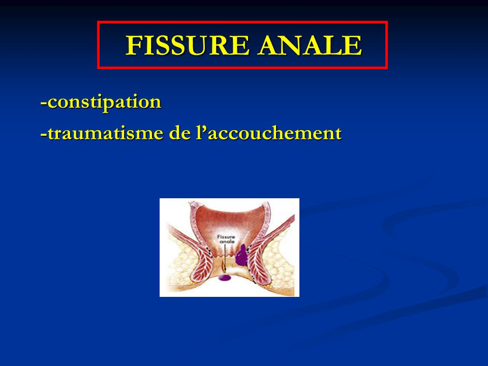 FISSURE ANALE -constipation -constipation -traumatisme de laccouchement -traumatisme de laccouchement