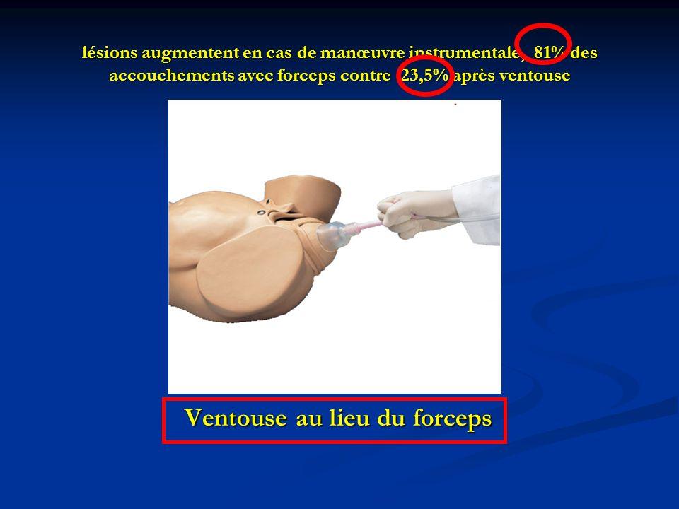lésions augmentent en cas de manœuvre instrumentale, 81% des accouchements avec forceps contre 23,5% après ventouse Ventouse au lieu du forceps Ventou