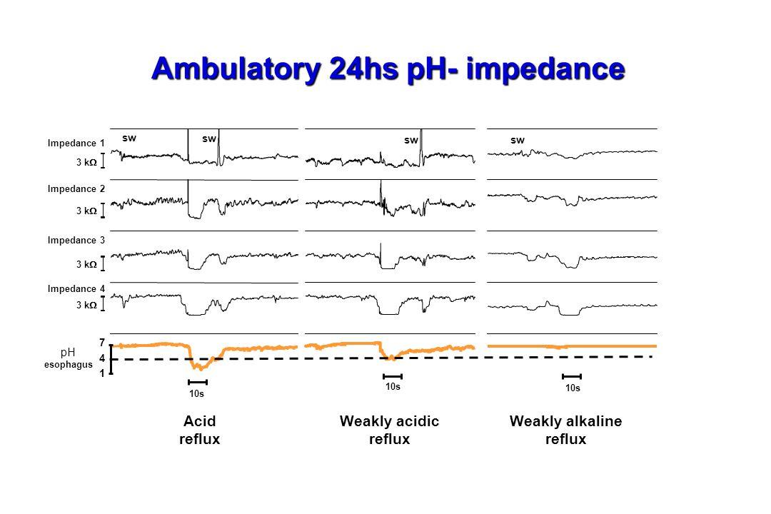3 k pH esophagus 7 4 1 sw 10s Impedance 1 Impedance 2 Impedance 3 Impedance 4 Acid reflux Weakly acidic reflux Weakly alkaline reflux Ambulatory 24hs