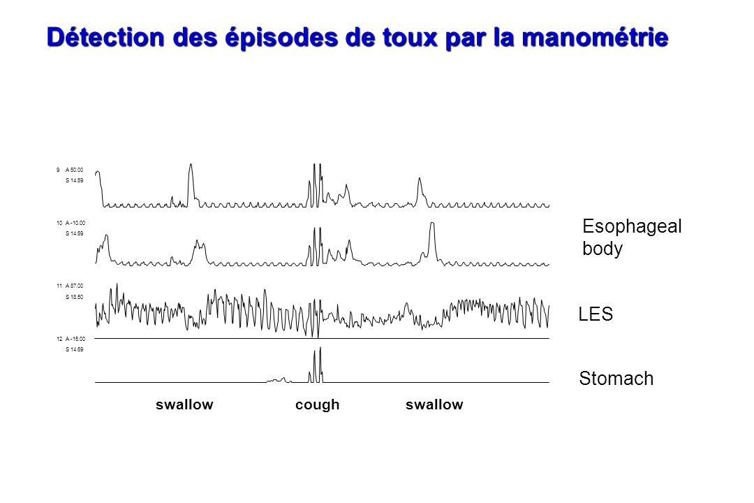 9A 50.00 S 14.69 10A -10.00 S 14.69 11A 87.00 S 18.50 12A -15.00 S 14.69 swallow cough LES Stomach Esophageal body Détection des épisodes de toux par