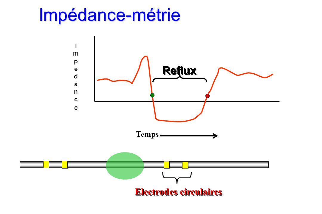 ImpedanceImpedance Temps Reflux Electrodes circulaires Impédance-métrie