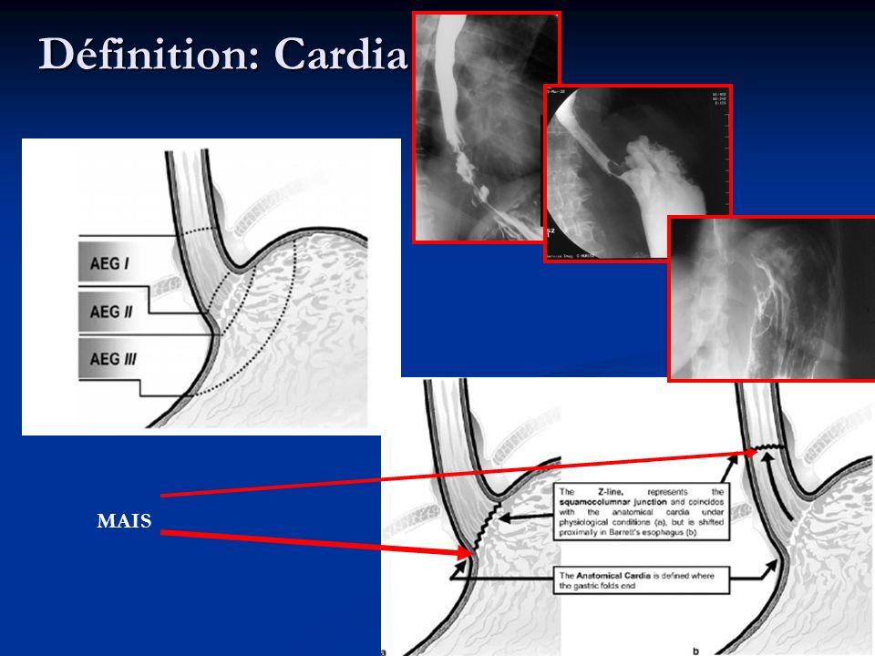 Classification AEG = endoscopie Corrélation difficile avec autres explorations: TOGD pb hernie hiatale