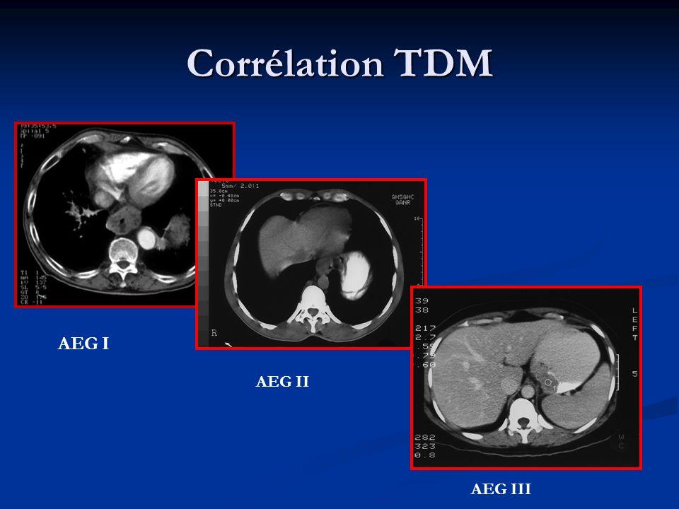 Définition ADK Estomac Définition endoscopique indépendante des variations anatomiques Définition endoscopique indépendante des variations anatomiques Tumeur dont le centre est à plus de 2 à 5 centimètres de la jonction oeso-gastrique Tumeur dont le centre est à plus de 2 à 5 centimètres de la jonction oeso-gastrique Chevauchement possible avec les AEG III Chevauchement possible avec les AEG III