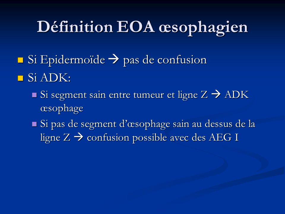 Définition EOA œsophagien Si Epidermoïde pas de confusion Si Epidermoïde pas de confusion Si ADK: Si ADK: Si segment sain entre tumeur et ligne Z ADK