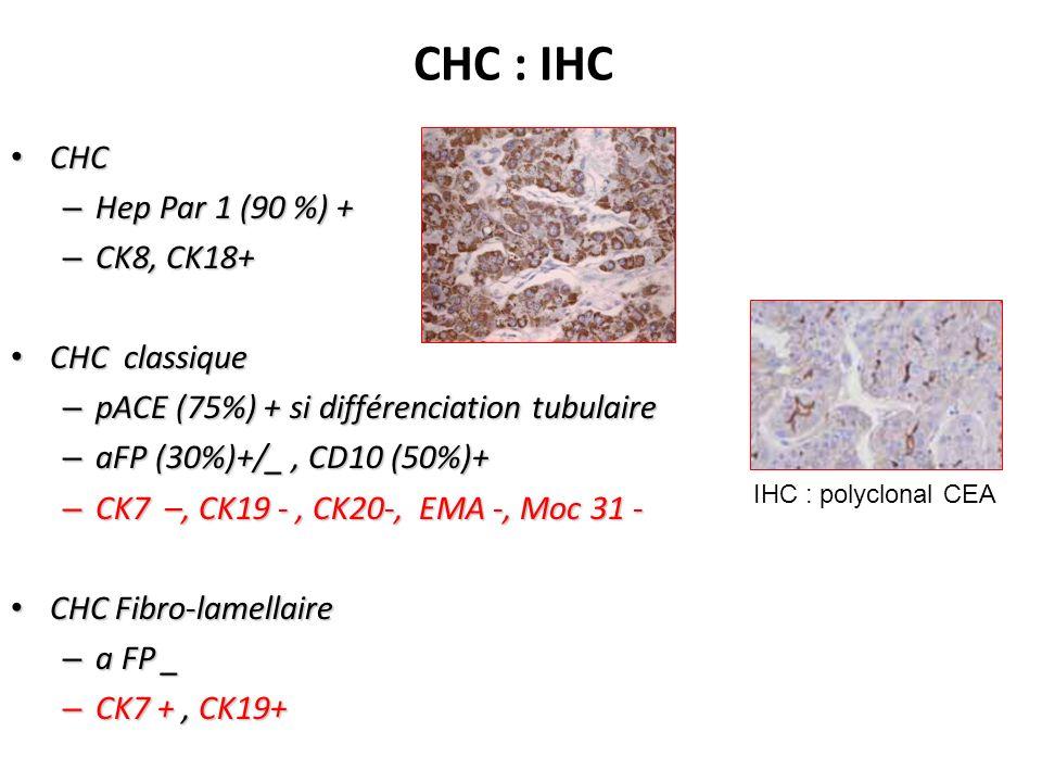 CHC : IHC CHC CHC – Hep Par 1 (90 %) + – CK8, CK18+ CHC classique CHC classique – pACE (75%) + si différenciation tubulaire – aFP (30%)+/_, CD10 (50%)