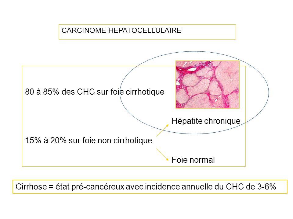 CARCINOME HEPATOCELLULAIRE 80 à 85% des CHC sur foie cirrhotique Hépatite chronique 15% à 20% sur foie non cirrhotique Foie normal Cirrhose = état pré