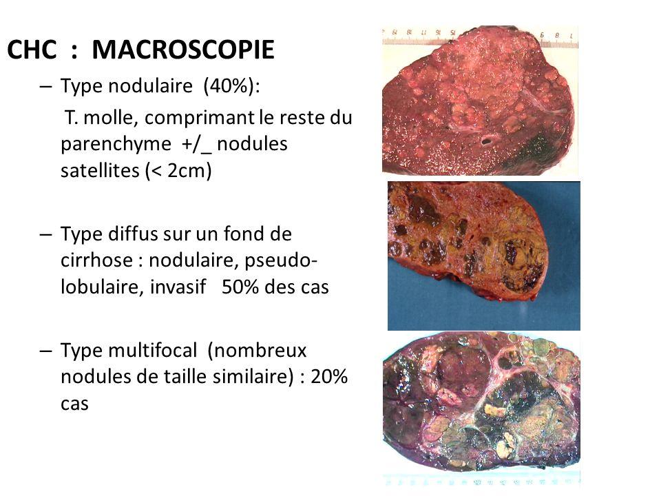 CHC : MACROSCOPIE – Type nodulaire (40%): T. molle, comprimant le reste du parenchyme +/_ nodules satellites (< 2cm) – Type diffus sur un fond de cirr