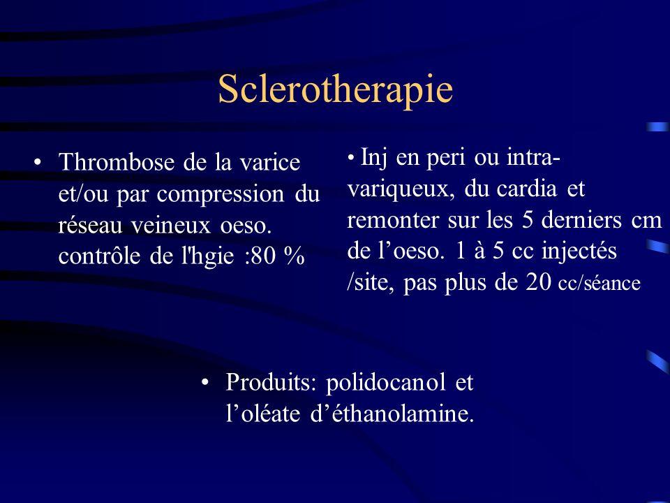 Sclerotherapie Thrombose de la varice et/ou par compression du réseau veineux oeso. contrôle de l'hgie :80 % Produits: polidocanol et loléate déthanol