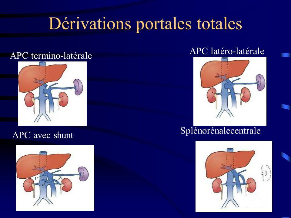 Dérivations portales totales APC termino-latérale APC latéro-latérale APC avec shunt Splénorénalecentrale