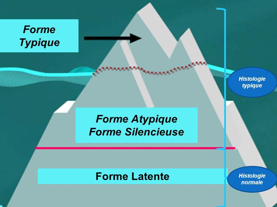Forme Typique Forme Atypique Forme Silencieuse Forme Latente Histologie typique Histologie normale