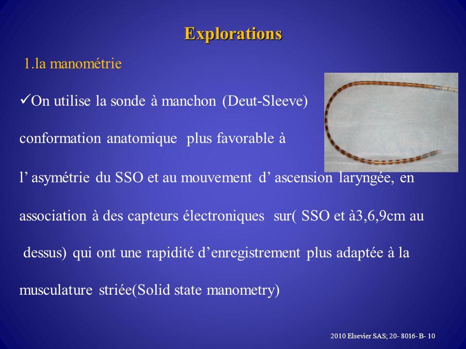 Explorations 1.la manométrie On utilise la sonde à manchon (Deut-Sleeve) conformation anatomique plus favorable à l asymétrie du SSO et au mouvement d ascension laryngée, en association à des capteurs électroniques sur( SSO et à3,6,9cm au dessus) qui ont une rapidité denregistrement plus adaptée à la musculature striée(Solid state manometry) 2010 Elsevier SAS; 20- 8016- B- 10
