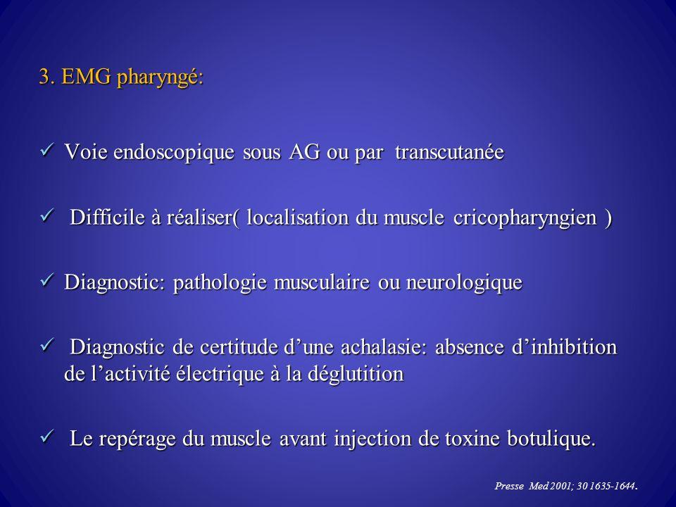 3. EMG pharyngé: Voie endoscopique sous AG ou par transcutanée Voie endoscopique sous AG ou par transcutanée Difficile à réaliser( localisation du mus