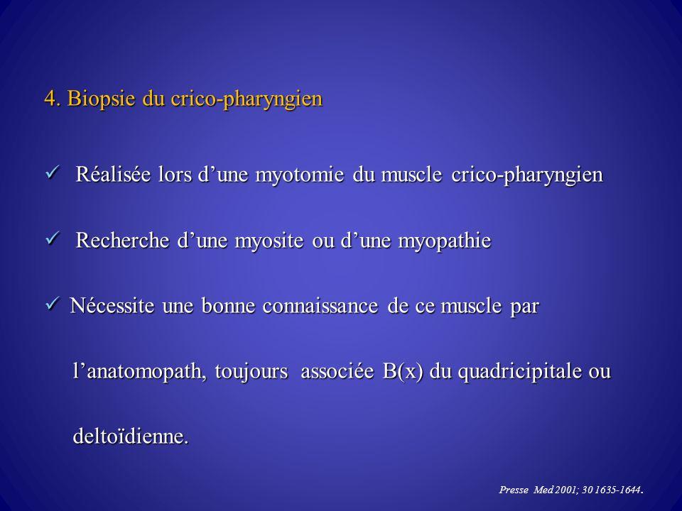 4. Biopsie du crico-pharyngien Réalisée lors dune myotomie du muscle crico-pharyngien Réalisée lors dune myotomie du muscle crico-pharyngien Recherche