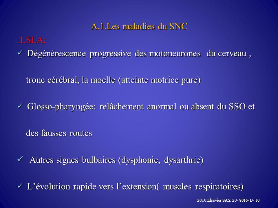 A.1.Les maladies du SNC.1.SLA: Dégénérescence progressive des motoneurones du cerveau, Dégénérescence progressive des motoneurones du cerveau, tronc cérébral, la moelle (atteinte motrice pure) tronc cérébral, la moelle (atteinte motrice pure) Glosso-pharyngée: relâchement anormal ou absent du SSO et Glosso-pharyngée: relâchement anormal ou absent du SSO et des fausses routes des fausses routes Autres signes bulbaires (dysphonie, dysarthrie) Autres signes bulbaires (dysphonie, dysarthrie) Lévolution rapide vers lextension( muscles respiratoires) Lévolution rapide vers lextension( muscles respiratoires) 2010 Elsevier SAS; 20- 8016- B- 10