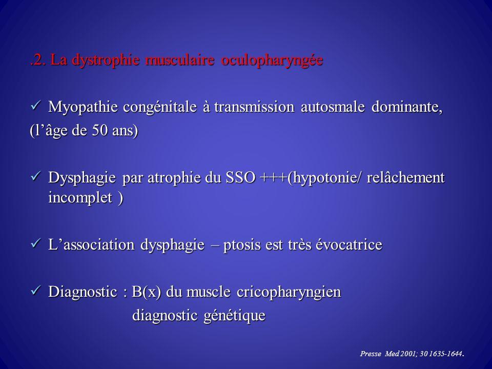 .2. La dystrophie musculaire oculopharyngée Myopathie congénitale à transmission autosmale dominante, Myopathie congénitale à transmission autosmale d