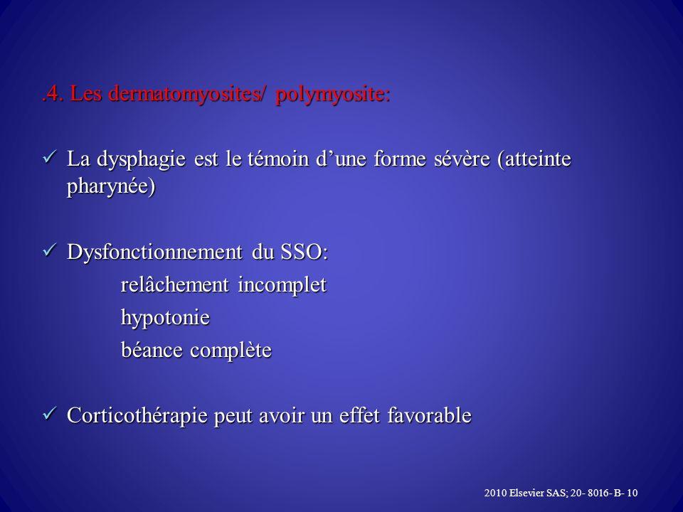 .4. Les dermatomyosites/ polymyosite: La dysphagie est le témoin dune forme sévère (atteinte pharynée) La dysphagie est le témoin dune forme sévère (a