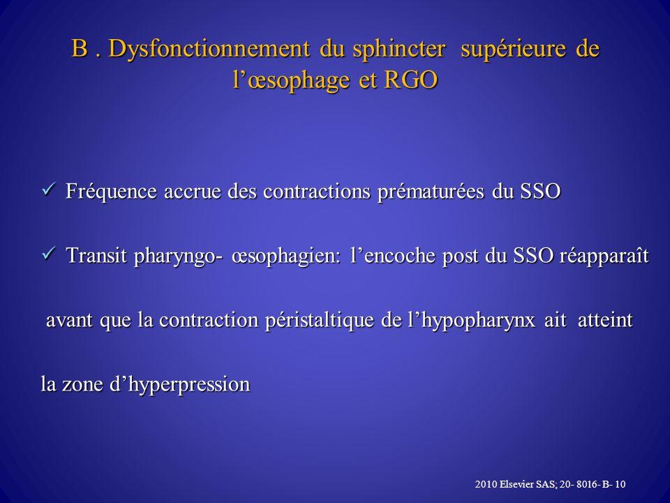 B. Dysfonctionnement du sphincter supérieure de lœsophage et RGO Fréquence accrue des contractions prématurées du SSO Fréquence accrue des contraction