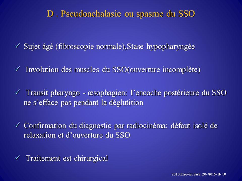D. Pseudoachalasie ou spasme du SSO Sujet âgé (fibroscopie normale),Stase hypopharyngée Sujet âgé (fibroscopie normale),Stase hypopharyngée Involution