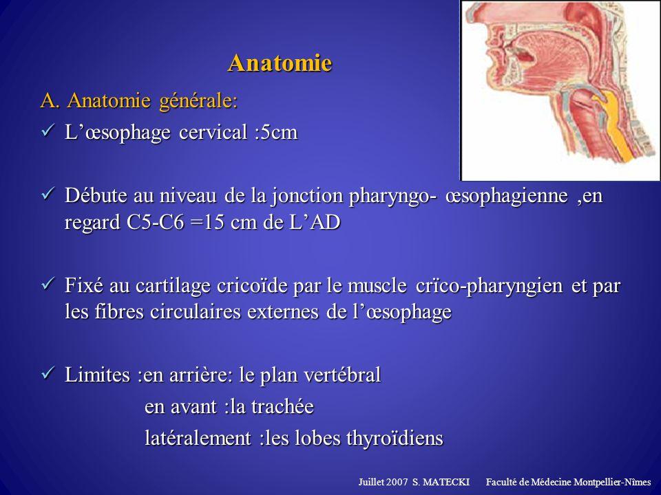Etiologies A.Affections neuromusculaires B. Dysfonctionnement du SSO et RGO C.