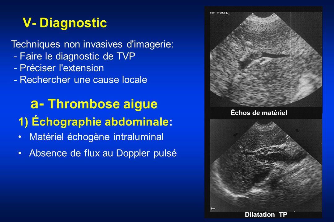 V- Diagnostic a- Thrombose aigue 1) Échographie abdominale: Matériel échogène intraluminal Absence de flux au Doppler pulsé Échos de matériel Dilatati