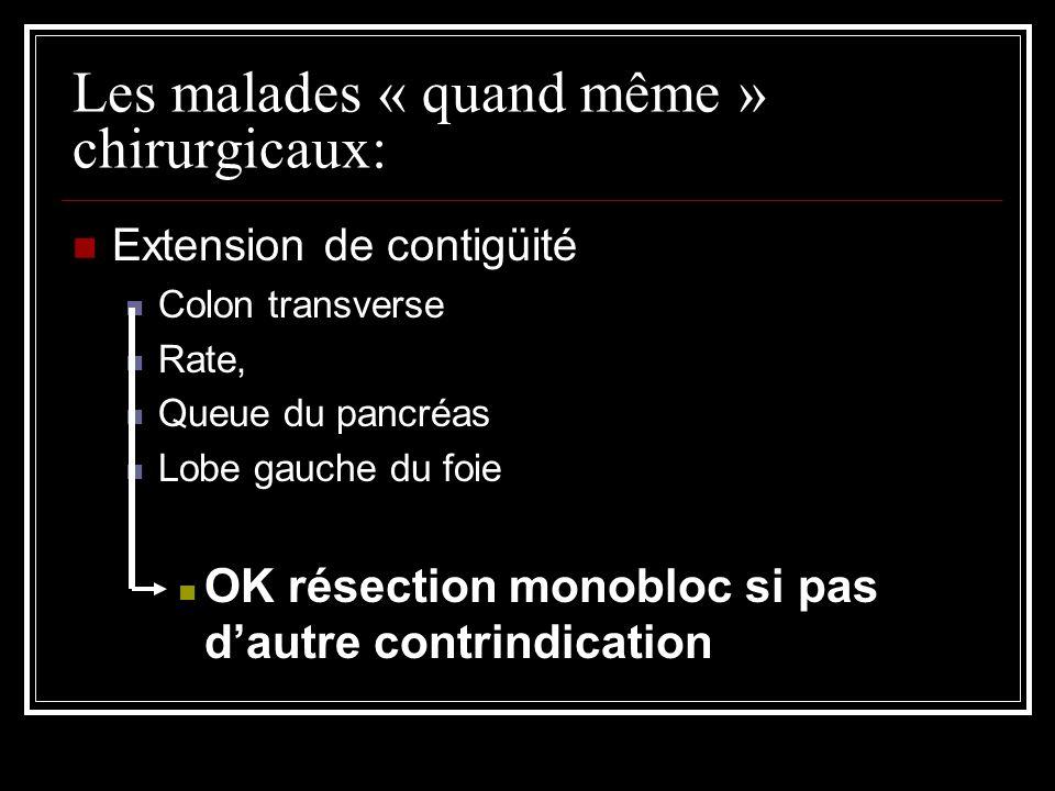 Les malades « quand même » chirurgicaux: Extension de contigüité Colon transverse Rate, Queue du pancréas Lobe gauche du foie OK résection monobloc si