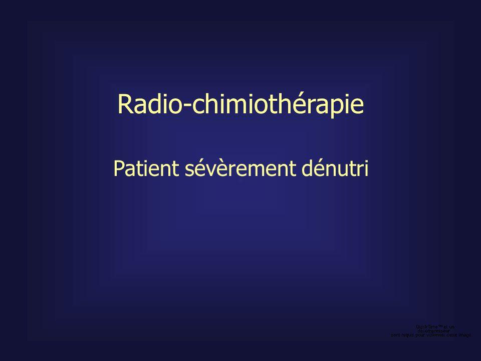 Patient sévèrement dénutri Radio-chimiothérapie