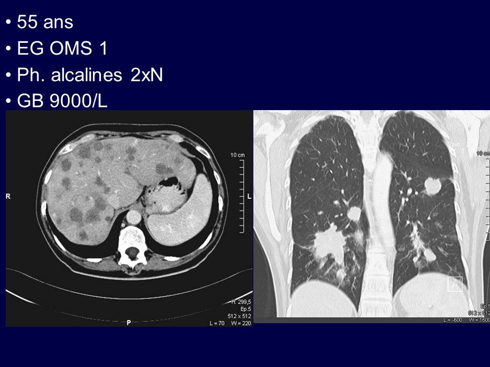 Cancers colorectaux métastatiques sans espoir de résécabilité Stratégies possibles : –bi voire trithérapie d emblée –escalade de chimiothérapie Les chimiothérapies combinées entrainent : –plus de réponses –plus de toxicités Sont-elles plus efficaces sur la survie?