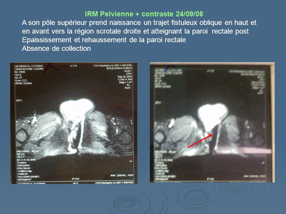 IRM Pelvienne + contraste 24/09/08 A son pôle supérieur prend naissance un trajet fistuleux oblique en haut et en avant vers la région scrotale droite