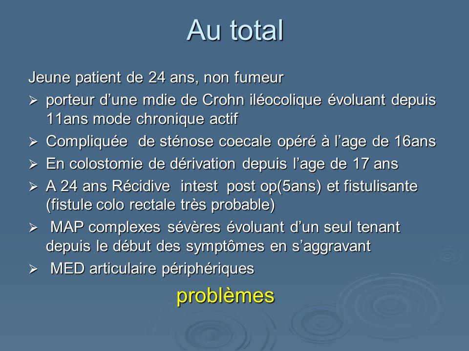 Jeune patient de 24 ans, non fumeur porteur dune mdie de Crohn iléocolique évoluant depuis 11ans mode chronique actif porteur dune mdie de Crohn iléoc