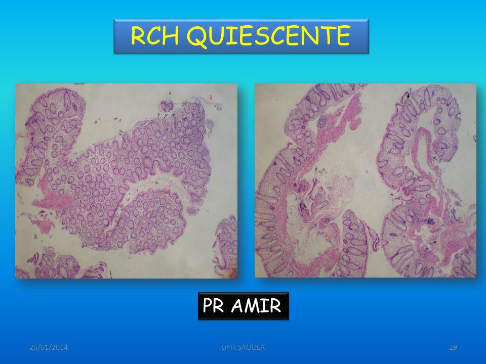 25/01/2014Dr H.SAOULA29 RCH QUIESCENTE PR AMIR