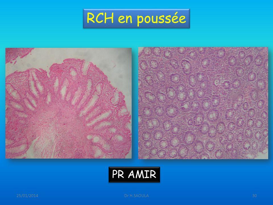 25/01/2014Dr H.SAOULA30 RCH en poussée PR AMIR