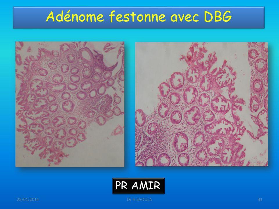 25/01/2014Dr H.SAOULA31 Adénome festonne avec DBG PR AMIR