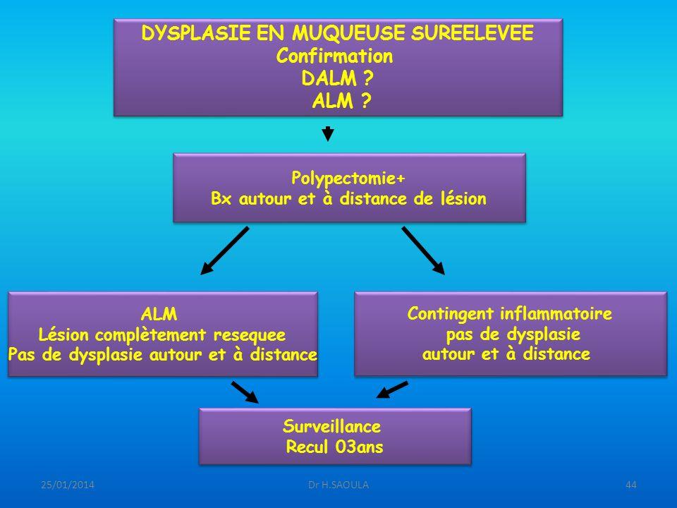 25/01/2014Dr H.SAOULA44 DYSPLASIE EN MUQUEUSE SUREELEVEE Confirmation DALM ? ALM ? DYSPLASIE EN MUQUEUSE SUREELEVEE Confirmation DALM ? ALM ? Polypect