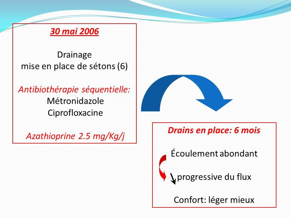 30 mai 2006 Drainage mise en place de sétons (6) Antibiothérapie séquentielle: Métronidazole Ciprofloxacine Azathioprine 2.5 mg/Kg/j Drains en place: