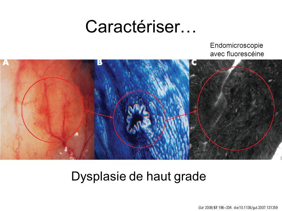 Caractériser… Dysplasie de haut grade Endomicroscopie avec fluorescéine