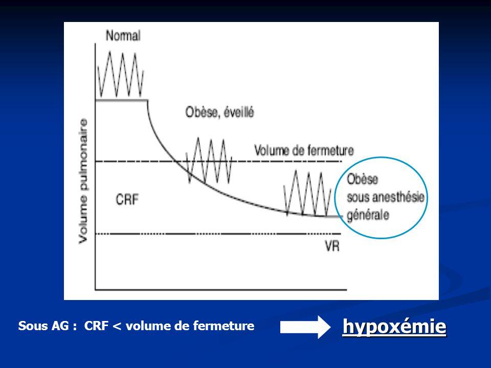 Sous AG : CRF < volume de fermeture hypoxémie