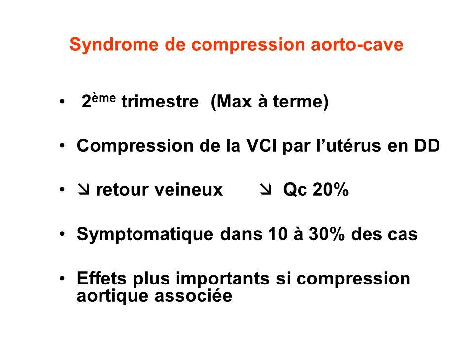 Syndrome de compression aorto-cave 2 ème trimestre (Max à terme) Compression de la VCI par lutérus en DD retour veineux Qc 20% Symptomatique dans 10 à