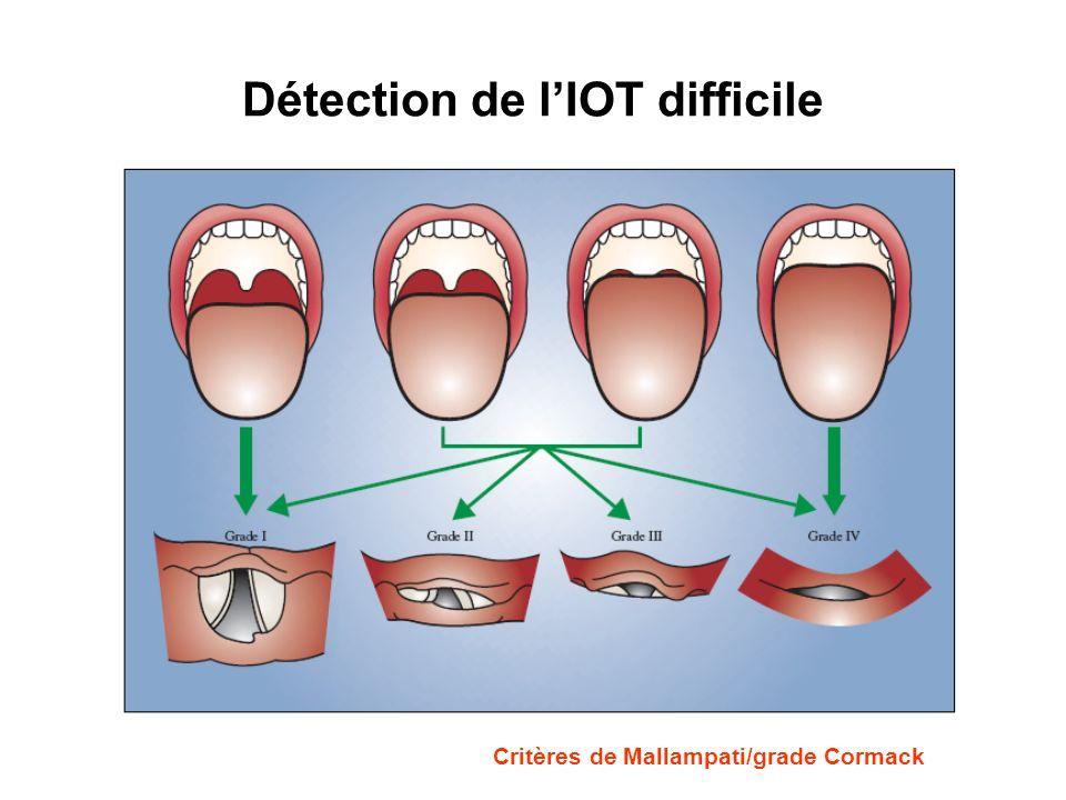 Détection de lIOT difficile Critères de Mallampati/grade Cormack