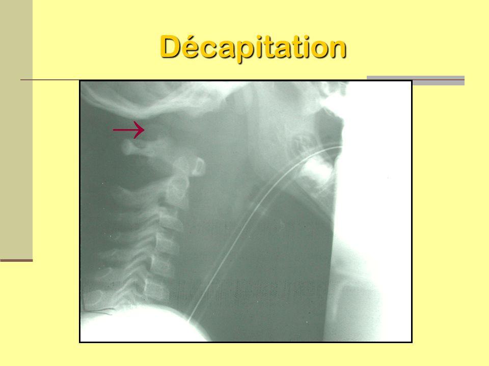 Dislocation atlanto-occipital (décapitation) Patient décède à la salle d urgence Histoire de cas Diagnostic final